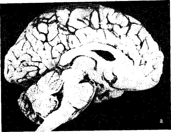Виды вклинений (дислокаций) головного мозга