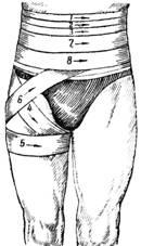 Подбородочно теменная повязка