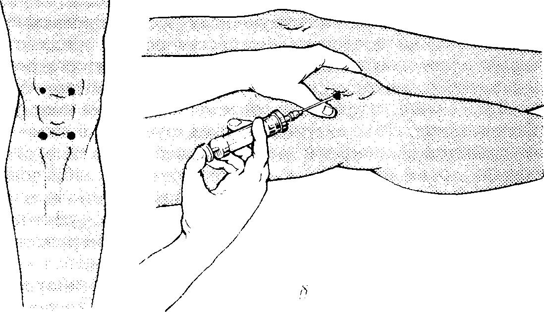 Пункция коленного сустава картинка