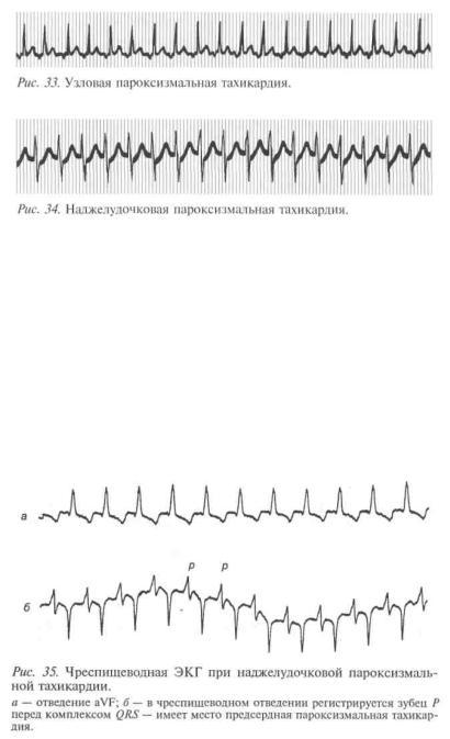 Экстрасистолы из ав соединения ⋆ Лечение Сердца