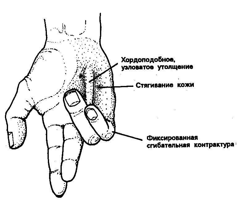 Б. Грубый систолический шум на основании сердца с резким