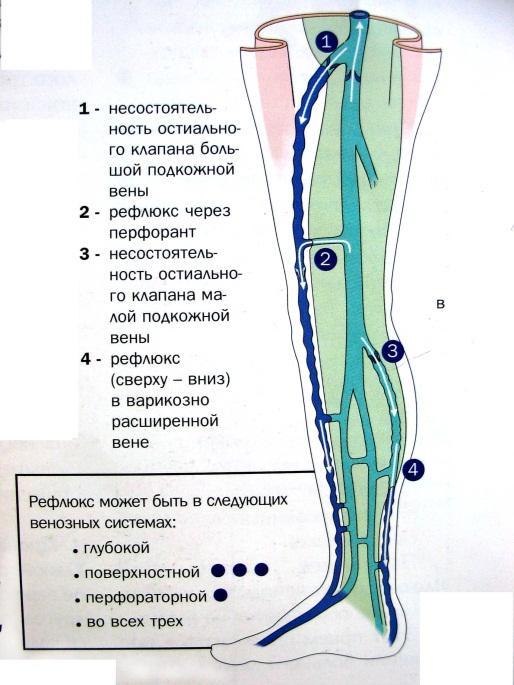 Теории патогенеза варикозной болезни
