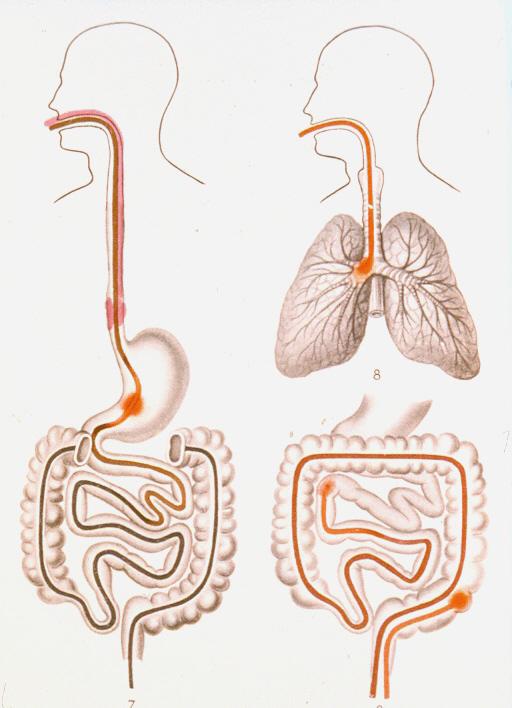 Желудочно кишечное кровотечение при хпн