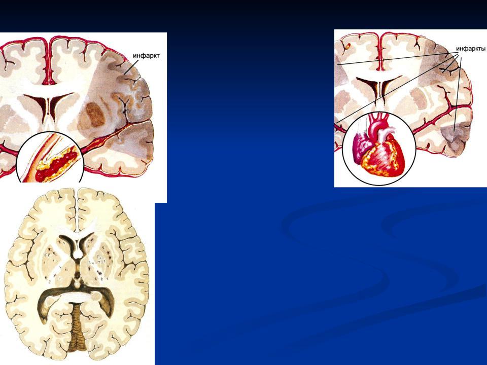 Профилактика инсульта и инфаркта презентация
