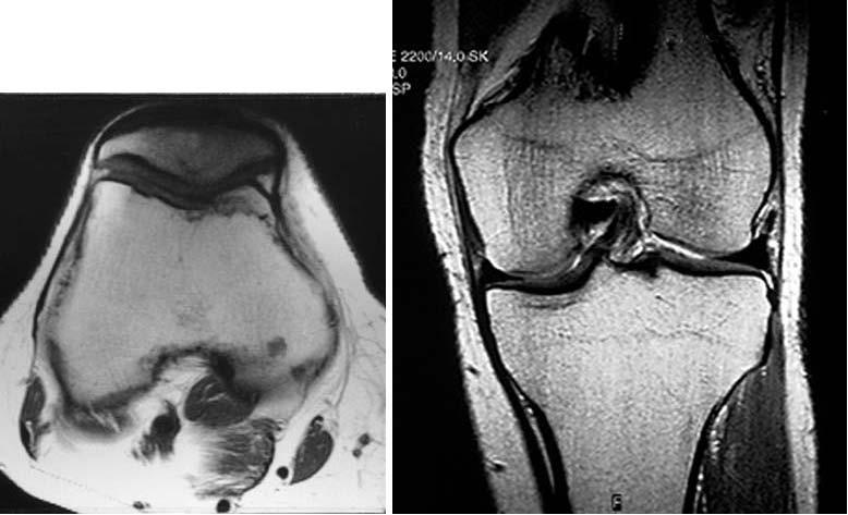 Повреждение мениска коленного сустава реферат 6955