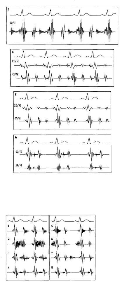 az EKG hipertóniát fog mutatni)