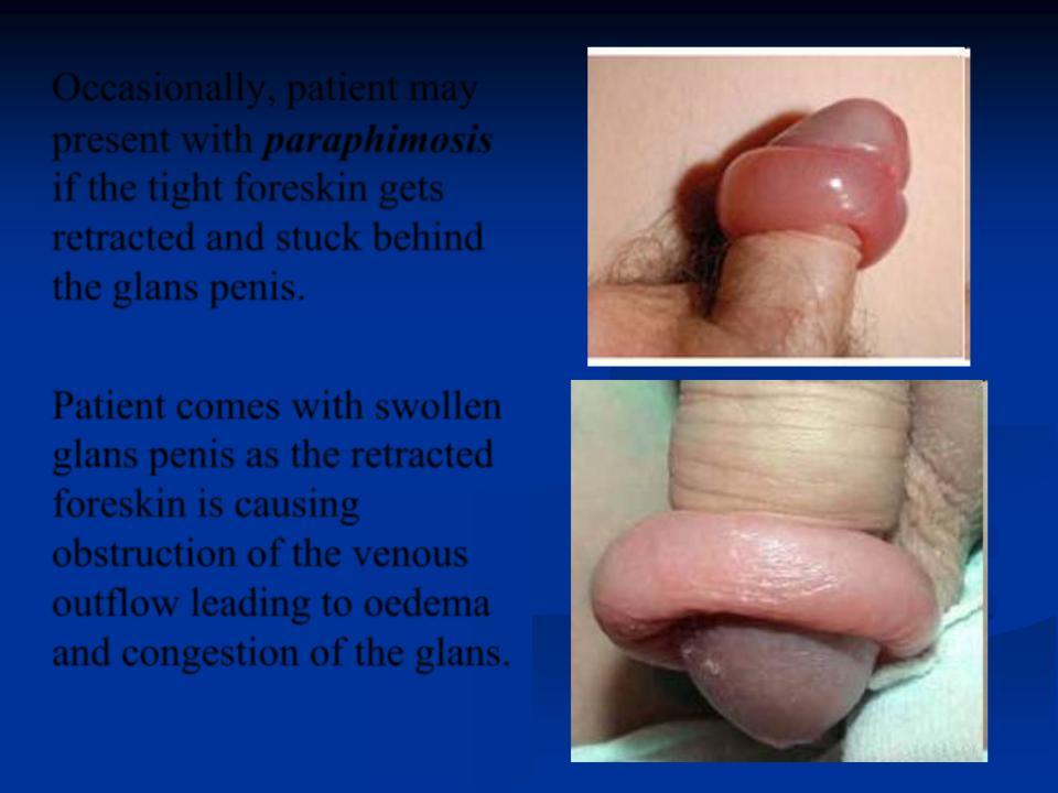 Swollen pecker — img 3
