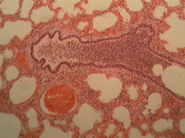 Патологическая анатомия органов дыхания поражения органов дыхания воспалительного характера Воспаление верхних дыхательных путей
