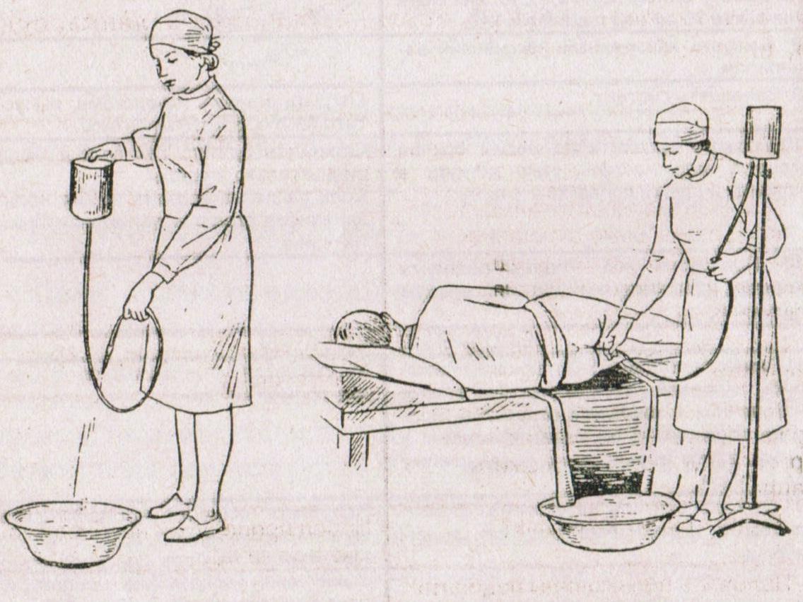 Как сделать клизму в домашних условиях себе беременной