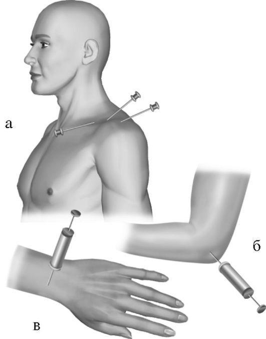 Пункция тазобедренного сустава техника выполнения видео — livemassage