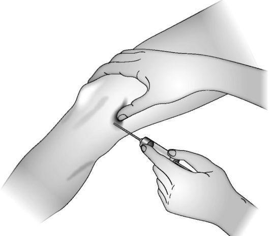 Пункция лучезапястного сустава производится суставы малахов плюс