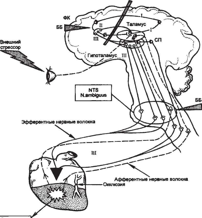 Гемокоагуляция  Свертываемость крови и тромбообразование при ишемической болезни сердца  Ишемическая болезнь сердца