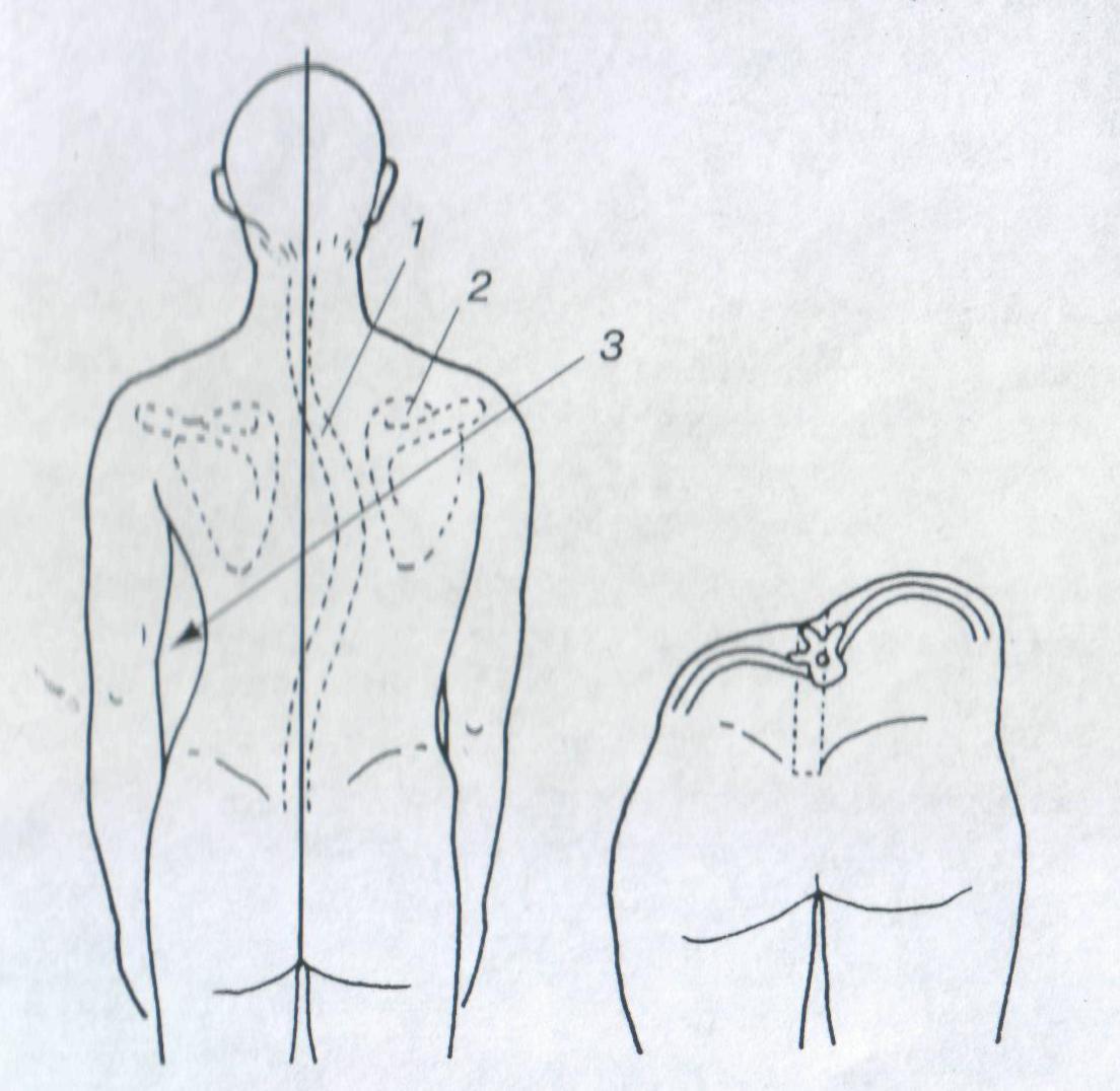 Асимметрия мышц спины при сколиозе