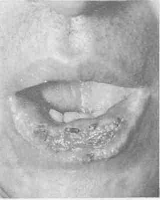 Реферат на тему рак нижней губы 2499