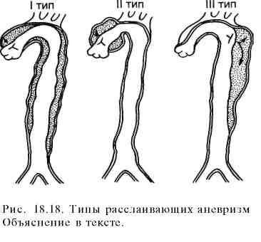 Операция на аорте брюшной полости