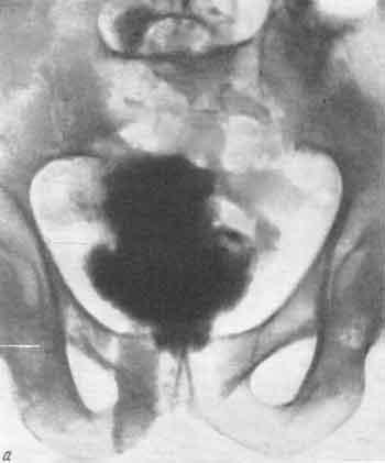 Травмы мочевого пузыря