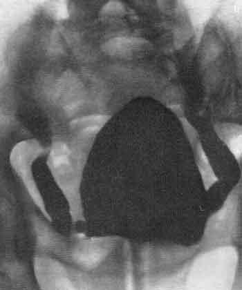 Реферат нейрогенный мочевой пузырь 6145