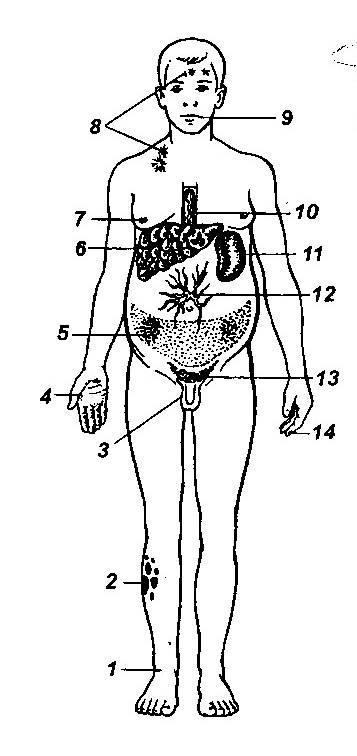 Урологические операции и послеоперационный уход