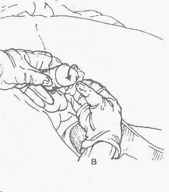 Катетеризация мочевого пузыря мужчины катетером Фолея.