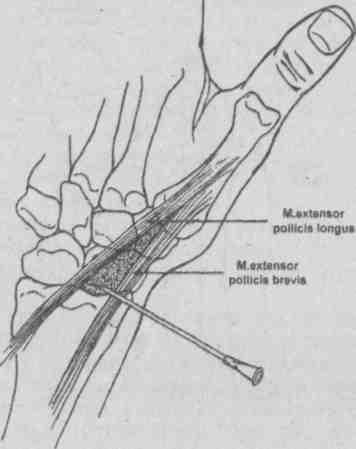 Лучезапястный сустав, техника пункции березовый деготь при болезни суставов