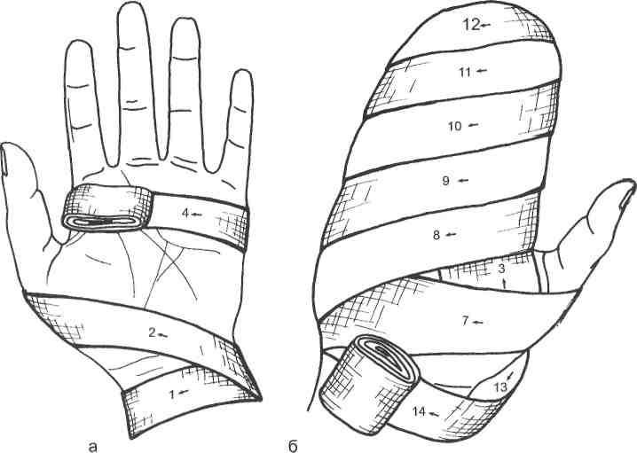 простым популярным наложить повязку на палец руки картинки заостренным