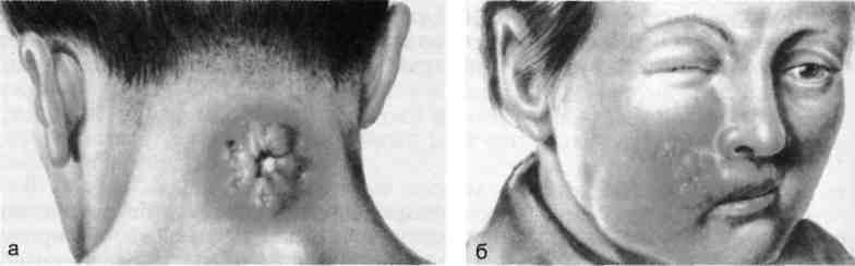 Фурункул клиническая картина