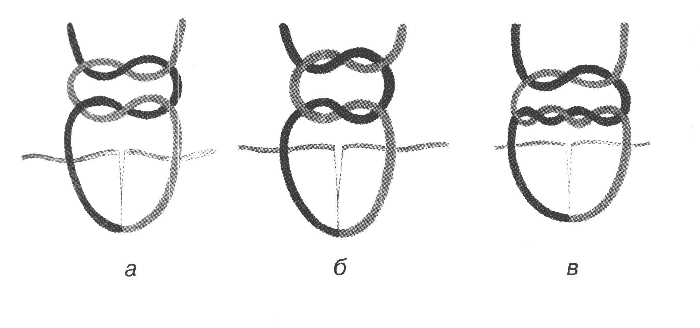 Хирургический узел картинка