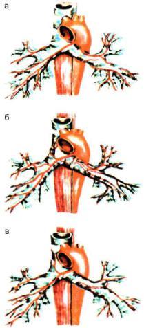 Кровеносные сосуды бронхов это