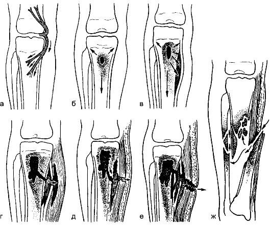 Изображение - Гнойные заболевания костей и суставов img-FN91GT