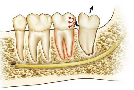 Осложнения после удаления зубов реферат 6370
