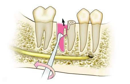 удаление зубов угловым элеватором