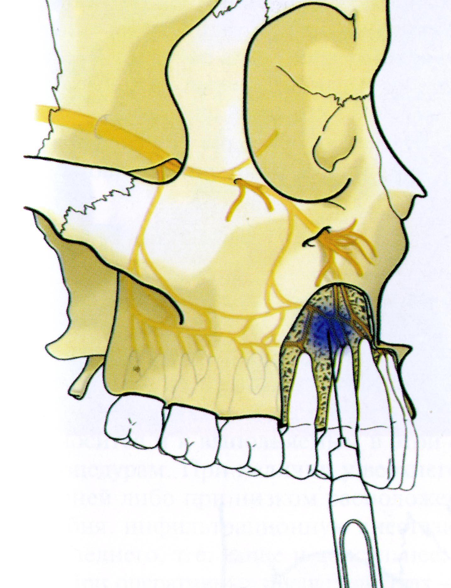 Техника проведения местной инфильтрационной и проводниковой анестезии в стоматологии