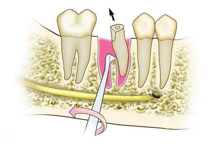Удаление корней зубов нижней челюсти угловым элеватором микроавтобус фольксваген транспортер сколько мест