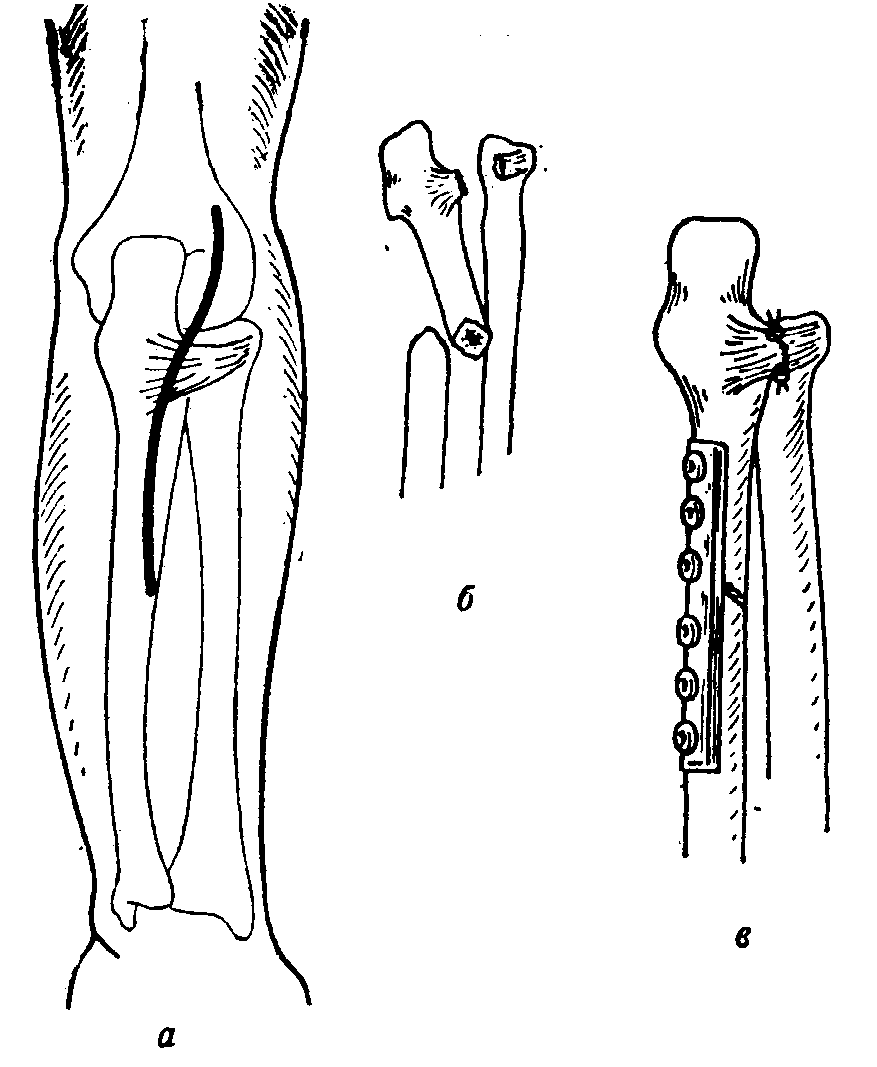 Оперативные доступы к лучезапястному суставу функции связок суставов