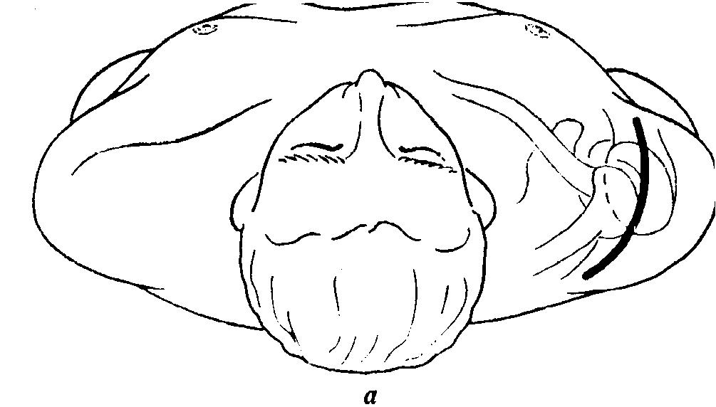 Дезартикуляция плечевого сустава париартрит трохантерин тазобедренного сустава