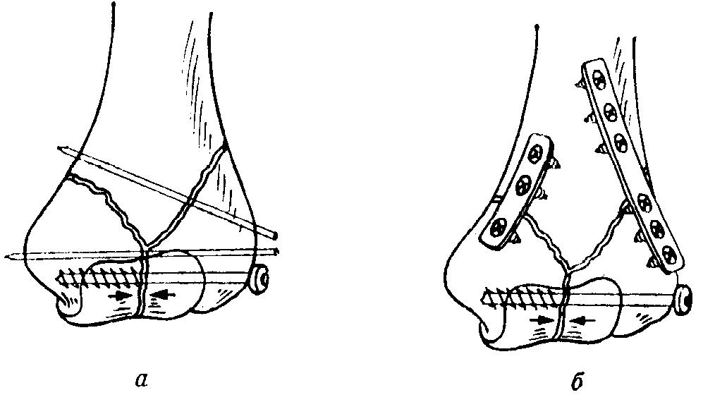 Изображение - Отрыв мыщелка локтевого сустава img-FfntZh