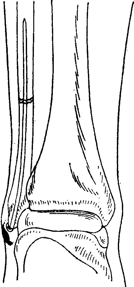 Пробивание каналы в тазобедренном суставе крем-гель ализан для суставов в зооаптеках санкт-петербуге