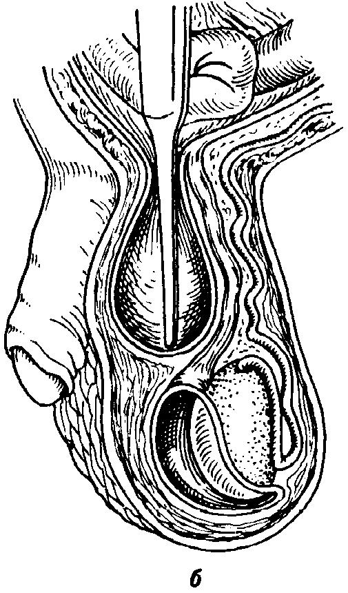 Косая и прямая паховая грыжа отличие