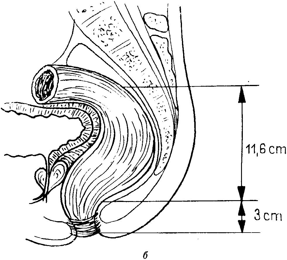anatomicheskaya-shema-analnogo-akta-v-razreze-tolpoy-v-odnu-russkoe