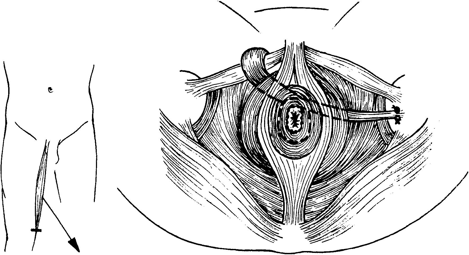 Трещина заднего прохода анальная трещина Причины