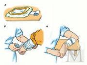 Средство для согревающего компресса в домашних условиях