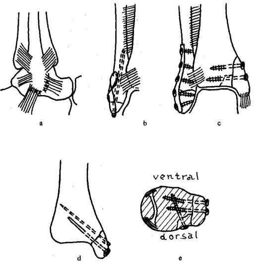 Закрытая чрезсиндесмозная травма правого голеностопного сустава
