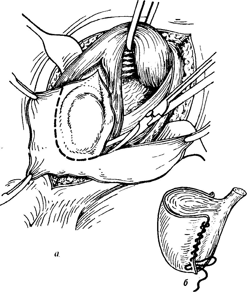 operațiunea de varicoză pelviană cele mai bune medicamente din venele varicoase