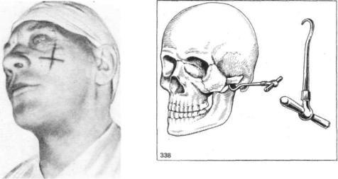 элеватор карапетяна для репозиции скуловой кости