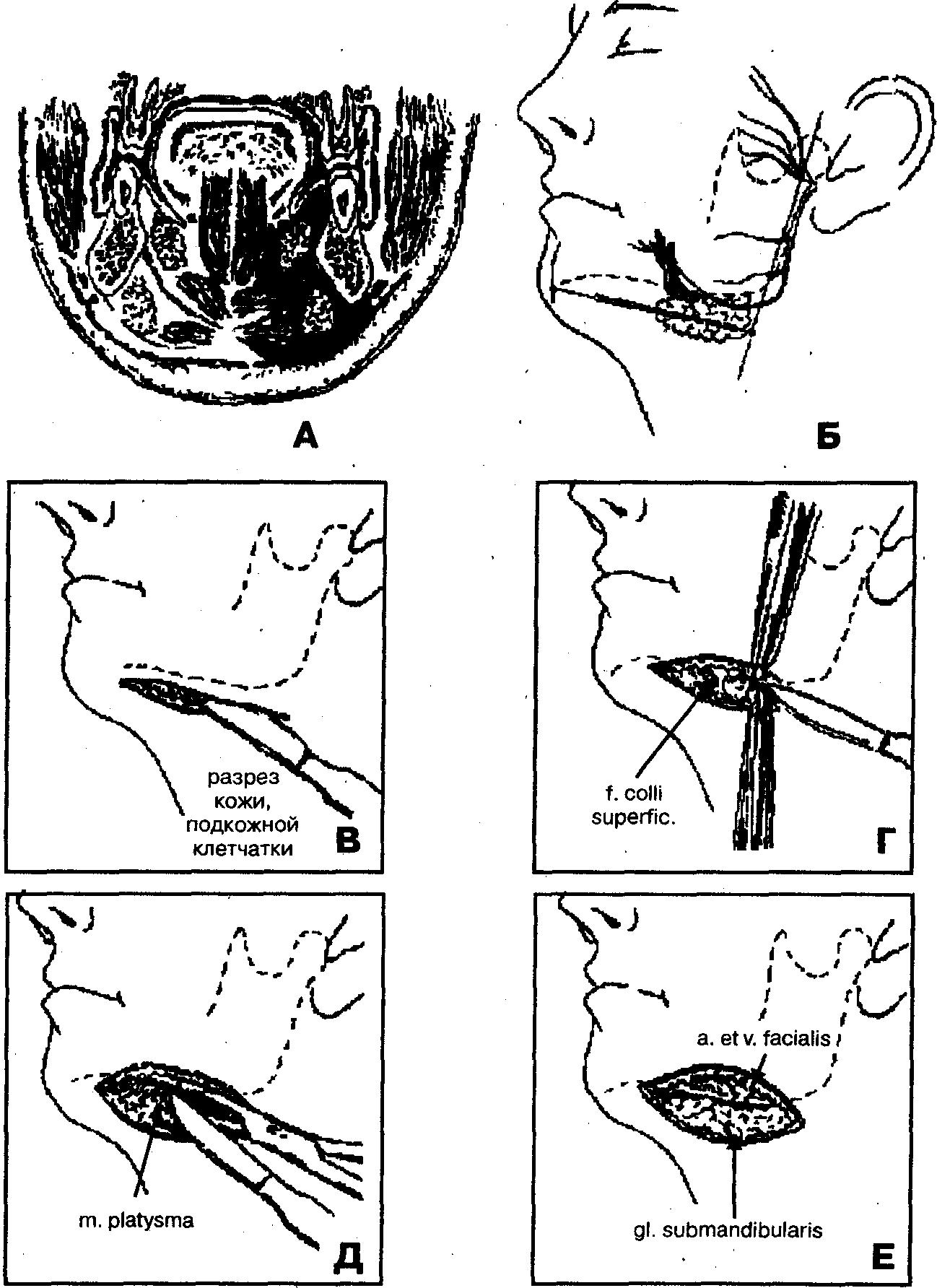 Флегмона дна полости рта реферат 4128