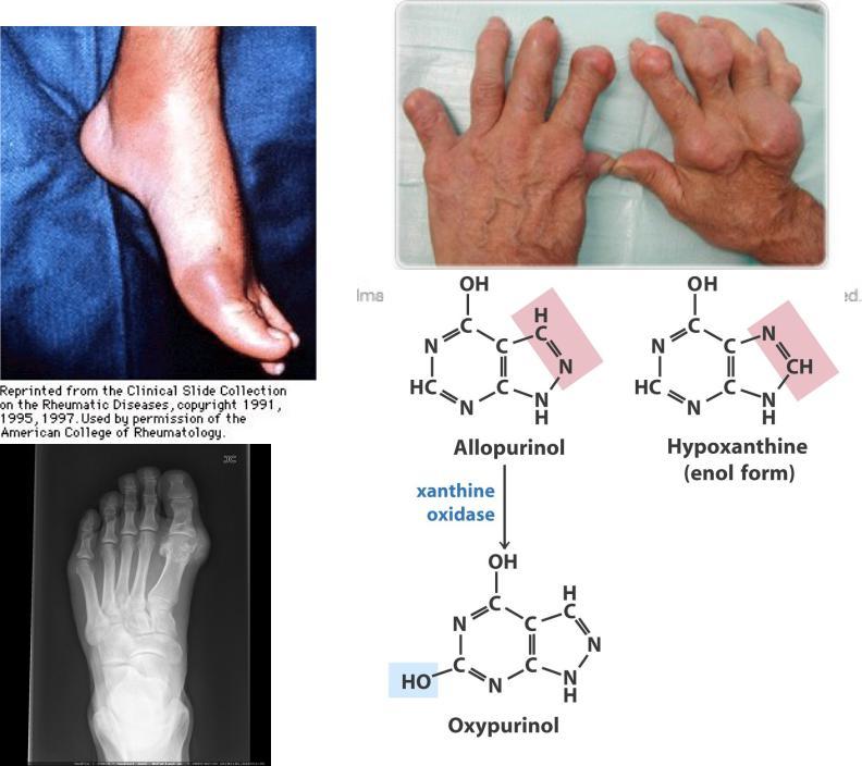 Синдром леша нихана реферат 7600