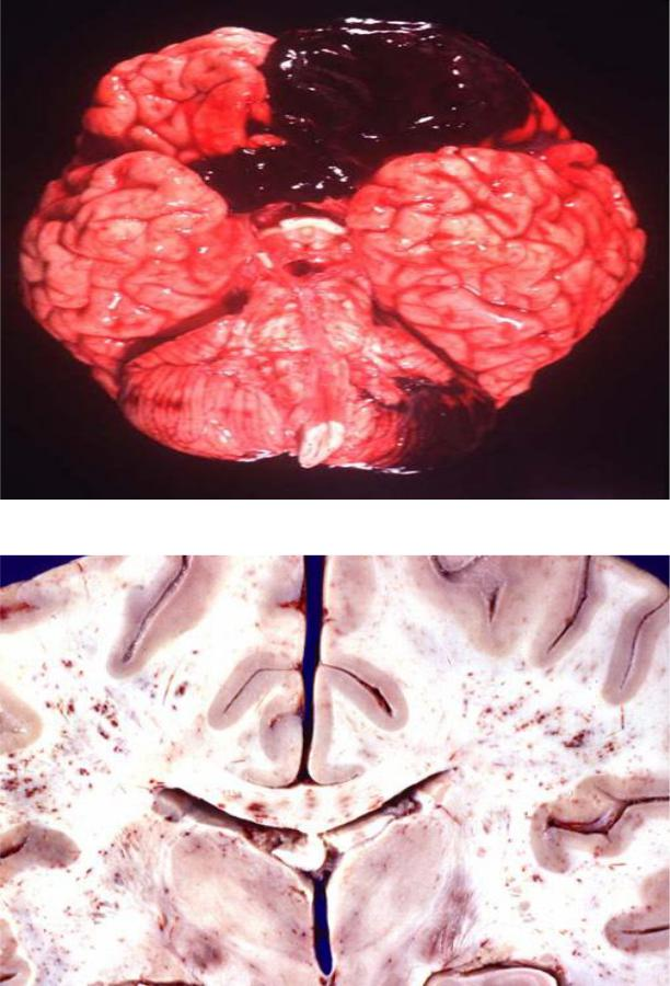 Кровоизлияния в мозг картинки