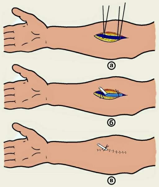 Доступ к плечевой артерии разрез по проекционной линии плечевой артерии