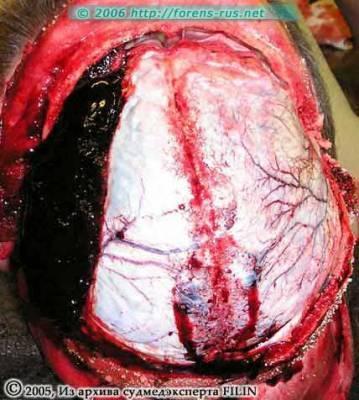 Лечение закрытой черепно-мозговой травмы