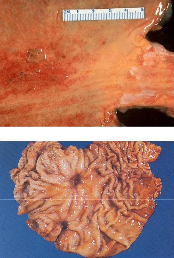 Хроническая язва желудка макро
